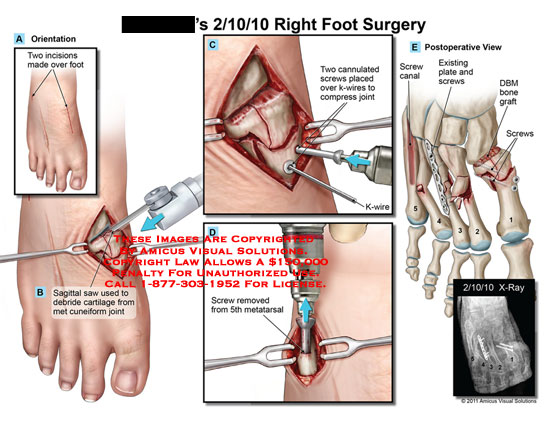 amicus,surgery,foot,incisions,sagittal,saw,debride,cartilage,met,cuneiform,joint,cannulated,screws,placed,k-wires,compress,removed,metatarsal,canal,existing,plate,DBM,bone,graft,x-ray