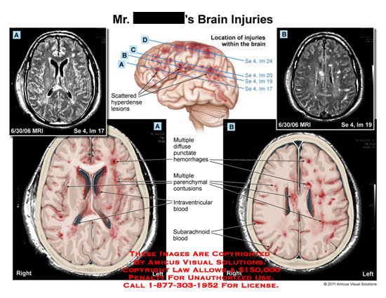 amicus,injury,brain,injuries,location,scattered,hyperdense,lesions,MRI,diffuse,punctate,hemorrhages,parenchymal,contusions,intraventricular blood,subarachnoid