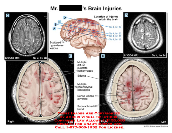 amicus,injury,brain,injuries,location,scattered,hyperdense,lesions,MRI,diffuse,punctate,hemorrhages,edema,parenchymal,contusions,dense,vertex,subarachnoid,blood