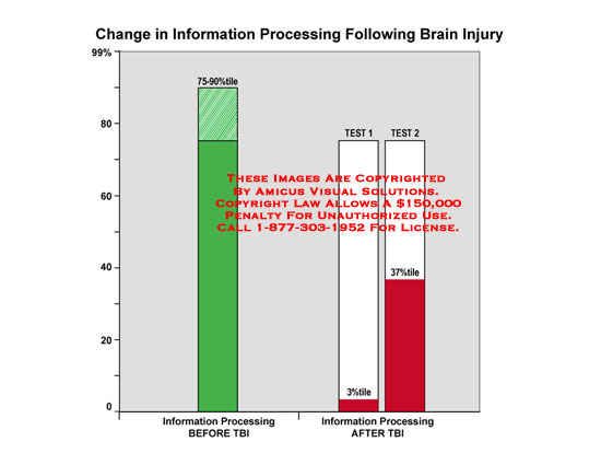 amicus,medical,brain,injury,change,information,processing,following,TBI,traumatic