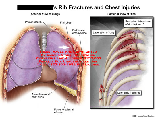 AMICUS Illustration of amicus,injury,chest,ribs,fractures,lungs ...