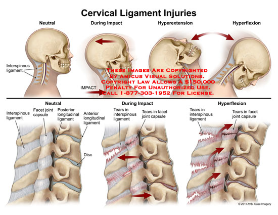 amicus,injury,cervical,ligament,injuries,whiplash,interspinous,impact,hyperextension,hyperflexion,facet,joint,capsule,longitudinal,disc,tears,
