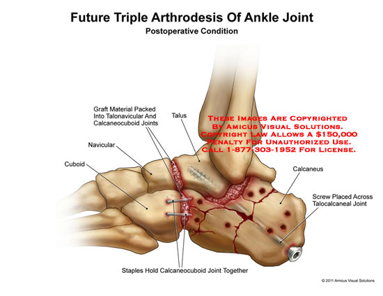 AMICUS Illustration of amicus,surgery,ankle,joints,future,triple ...