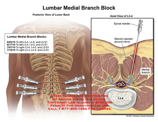 amicus,medical,lumbar,medial,branch,block,spinal,needle,steroid,nerve,lower,back,L3-4