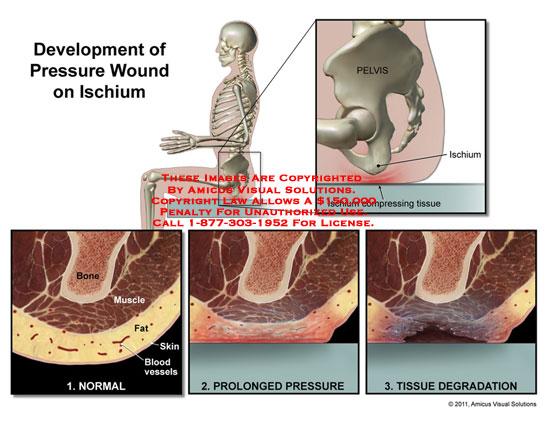 amicus,medical,pressure,wounnd,ischium,development,pelvis,bone,muscle,fat,skin,blood,vessels,tissue,degradation