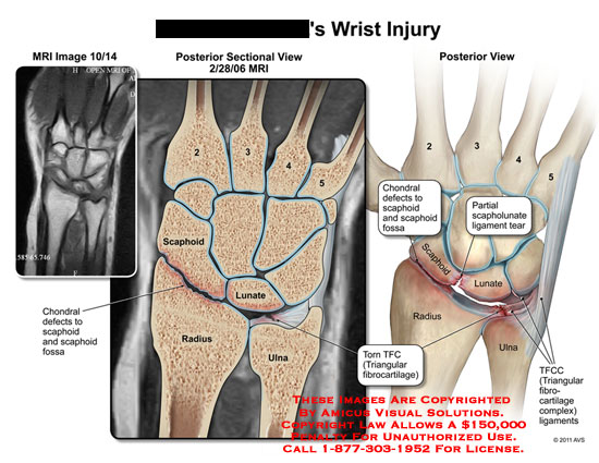 amicus,injury,wrist,MRI,scaphoid,lunate,radius,ulna,chondral,defects,fossa,scapholunate,ligaments,tear,torn,TFC,triangular,fibrocartilage,TFCC,fibrocartilage,complex,