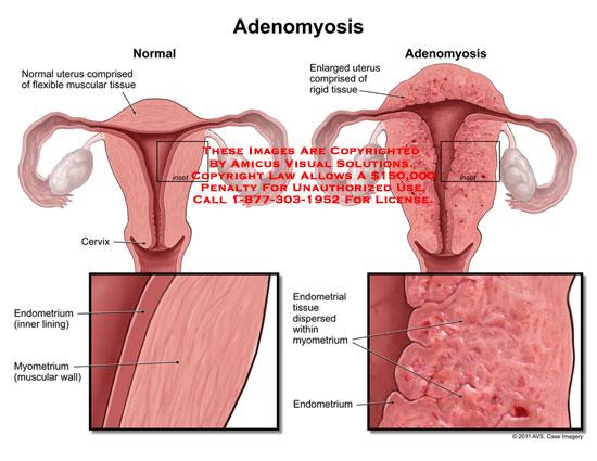 amicus,medical,uterus,adenomyosis,muscular,tissue,flexible,enlarged,rigid,cervix,endometrium,lining,myometrium,muscular,wall,endometrial,