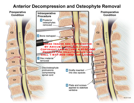amicus,surgery,anterior,decompression,osteophytes,removal,spinal,cord,intraoperative,procedure,bone,reshaped,disc,material,protrusions,compressing,grafts,spaces,plate,screws,vertebra,stabilize