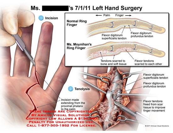 amicus,surgery,hand,ring,finger,palm,flexor,digitorum,superficialis,tendons,profundus,scarred,bone,soft,tissue,tenolysis,phalanx,movement