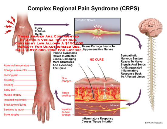 amicus,medical,complex,regional,pain,syndrome,CRPS,injury,initiates,cycle,sensitive,nerves,tissue,damage,hypersensitive,sympathetic,nervous,system,signals,inflammatory,response,affected,limbs,irritation,impaired,muscle,function,swelling,skin,changes,painful,symptoms,cycle,abnormal,temperature,color,burning,pain,sweating,swelling,scaly,skin,atrophy,movement,breakdown,joints,sensitive,touch,bone