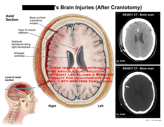amicus,injury,brain,injuries,craniotomy,bone,cut,surgery,corpus,callosum,subdural,hematoma,hemisphere,enlarged,ventricles,CT