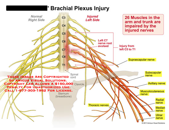 amicus,injury,brachial,plexus,nerves,root,avulsed,spinal,cord,clavicle,sternum,muscles,arm,trunk,impaired,injured,suprascapular,subscapular,axillary,musculocutaneous,radial,median,ulnar,throacic