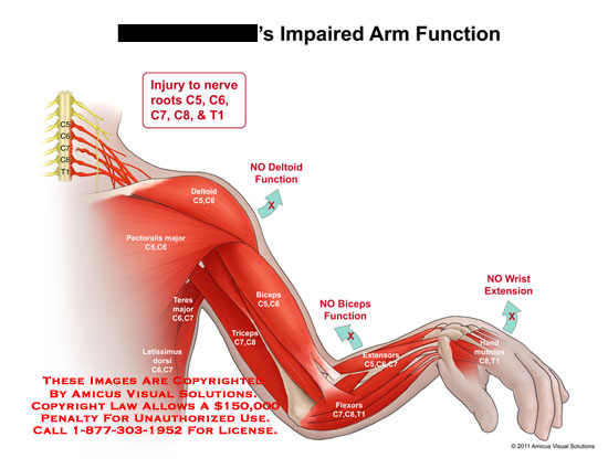 amicus,injury,arm,impaired,function,nerve,roots,no,deltoid,function,biceps,wrist,extension,pectoralis,major,teres,latissimus,dorsi,triceps,extensors,flexors,hand,muscles