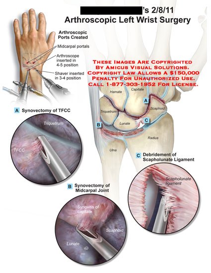 amicus,surgery,wrist,arthroscopic,ports,midcarpal,portals,arthroscope,shaver,synovectomy,TFCC,triangular,fibrocartilage,complex,joint,debridement,scapholunate,ligament,synovitis,radius,ulna,triquetrum,hamate,capitate,scaphoid,lunate