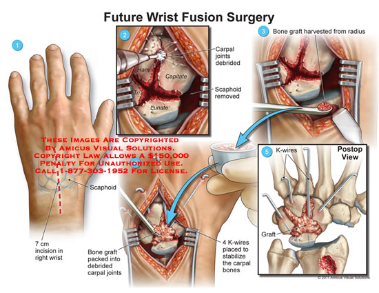 amicus,surgery,wrist,future,fusion,scaphoid,carpal,joints,debrided,hamate,capitate,triquetrum,lunate,bone,graft,harvested,radius,K-wires,stabilize,bones
