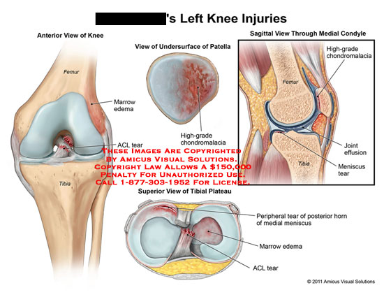 amicus,injury,knee,injuries,femur,tibia,ACL,tear,cruciate,ligament,marrow,edema,patella,chondromalacia,tibial,plateau,horn,meniscus,condyle,joint,effusion
