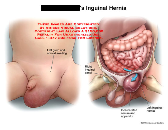 AMICUS Illustration of amicus,medical,groin,inguinal,hernia ...