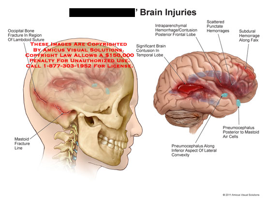 amicus,injury,brain,injuries,occipital,bone,fracture,lambdoid,suture,mastoid,line,contusion,temporal,lobe,intraparenchymal,hemorrhages,frontal,scattered,punctate,subdural,falx,pneumocephalus,mastoid,air,cells,convexity