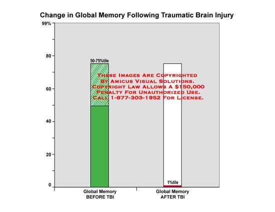 amicus,medical,brain,traumatic,memory,injury,global,change,TBI