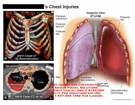 AMICUS Illustration of amicus,injury,chest,injuries,CT,fractured ...