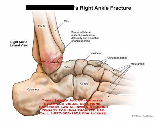 amicus,injury,ankle,fracture,fibula,tibia,malleolus,deformity,disruption,mortise,talus,calcaneus,cuboid,navicular,cuneiform,bones,metatarsals