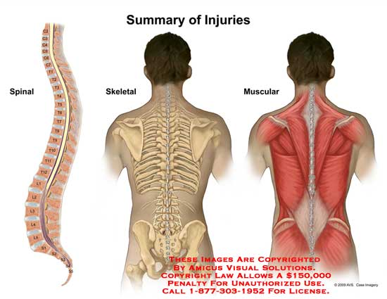 amicus,injury,summary,injuries,spinal,skeletal,muscular