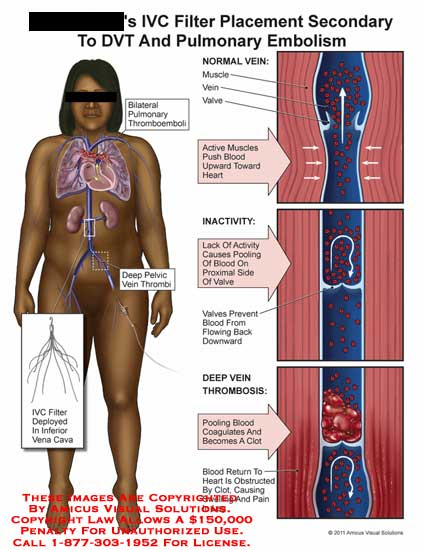amicus,medical,IVC,vena,cava,filter,placement,secondary,DVT,deep,vein,thrombosis,pulmonary,embolism,thromboemboli,muscles,vein,valve,blood,heart,inactivity,pooling,flowing,clot,obstructed,swelling,pain,leg