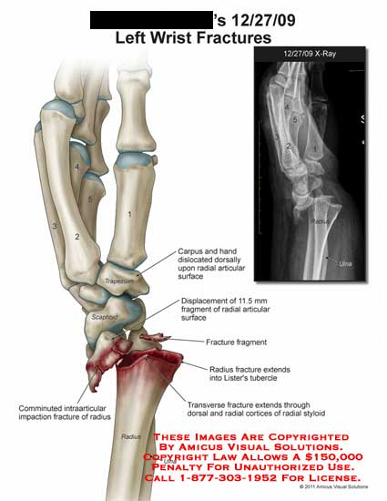 amicus,injury,wrist,fractures,comminuted,intraarticular,impaction,radius,carpus,hand,dislocated,radial,articular,surface,displacement,fragment,lister