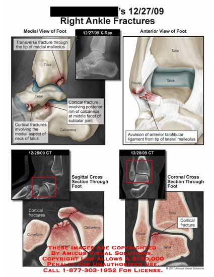 amicus,injury,ankle,fractures,x-ray,CT,foot,transverse,malleolus,tibia,talus,calcaneus,fibula,cortical,neck,subtalar,joint,avulsion,talofibular,ligament,cuneiform,cuboid,