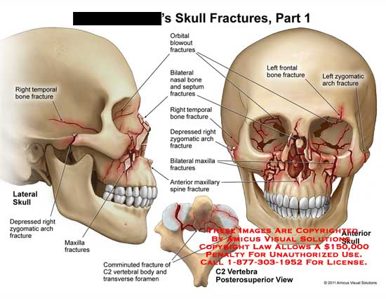 Amicus Illustration Of Amicus Injury Skull Fractures Part