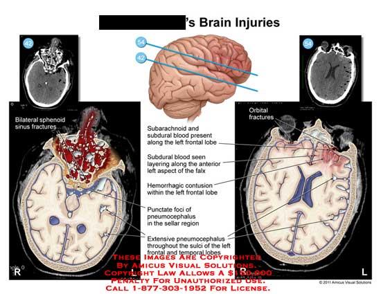 amicus,injury,brain,injuries,sphenoid,sinus,fractures,orbital,subarachnoid,subdural,blood,frontal,lobe,layering,falax,hemorrhagic,contusion,punctate,foci,pneumocephalus,sellar,region,sulci,temporal