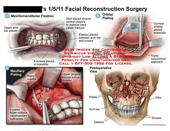 amicus,surgery,face,facial,reconstruction,maxillomandibular,fixation,arch,bar,screws,mandible,wire,incisors,fractures,elastics,orbital,plating,corneal,shields,fixate,rim,transconjunctival,maxillary,gingival,buccal,sulcus,nasomaxillary,buttresses,plates,