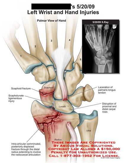 amicus,injury,wrist,hand,x-ray,scaphoid,fracture,scapholunate,ligamentous,lunate,intra-articular,comminuted,displaced,radius,radiocarpal,articulation,ulna,disruption,carpal,rows,laceration,palmaris,longus,tendon