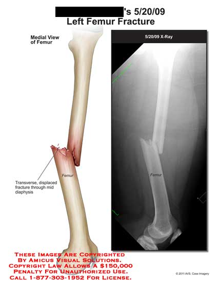 amicus,injury,femur,fracture,transverse,displaced,diaphysis,x-ray