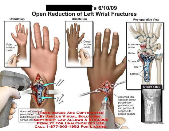 amicus,surgery,wrist,open,reduction,fractures,accumed,standard,plate,radial,screws,accutrak,radius,ulna,x-ray,mini,guidewire,scaphoid,