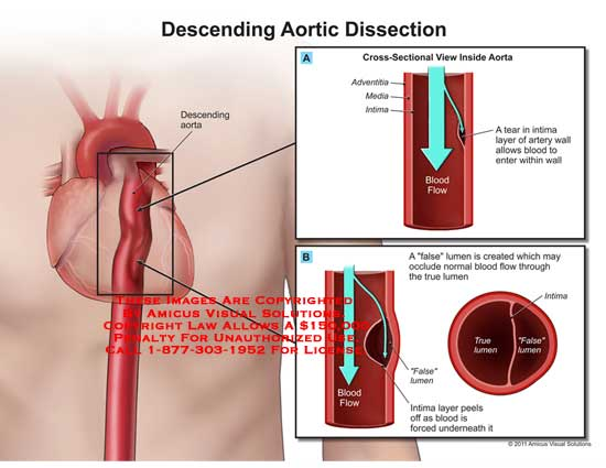 AMICUS Illustration of amicus,medical,descending,aortic,dissection ...