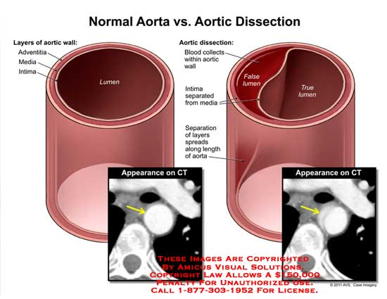 amicus,medical,aorta,dissection,layers,aortic,wall,adventitia,media,intima,lumen,CT,blood,collects,false,true,separated,separation