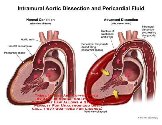 amicus,medical,heart,intramural,aortic,dissection,pericardial,fluid,heart,arch,parietal,pericardium,pericardial,space,atrium,ventricle,collapsed,blood,tamponade,rupture,weakened,wall,