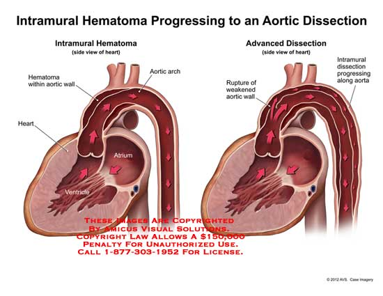 amicus,medical,heart,intramural,hematoma,progressing,aortic,dissection,ventricle,atrium,wall,arch,rupture,weakened,