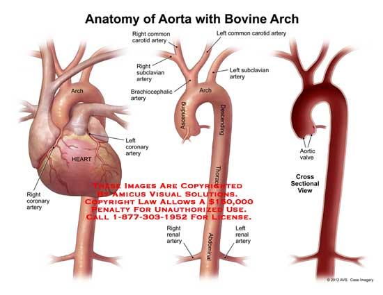amicus,anatomy,aorta,bovine,arch,heart,coronary,artery,ascending,descending,thoracic,abdominal,brachiocephalic,subclavian,common,carotid,renal,valve,aortic