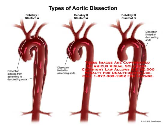 amicus,medical,aorta,types,aortic,dissection,debakey,stanford,ascending,descending
