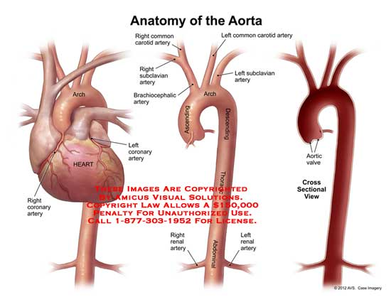amicus,anatomy,aorta,coronary,artery,heart,arch,common,carotid,subclavian,brachiocephalic,ascending,descending,thoracic,abdominal,renal,aortic,valve