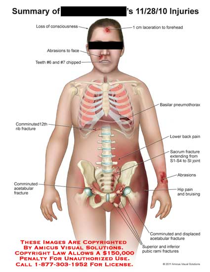 amicus,injury,summary,injuries,loss,consciousness,abrasions,face,teeth,chipped,comminuted,rib,fractures,acetabular,laceration,forehead,basilar,pneumothorax,lower,back,pain,sacrum,SI,sacroiliac,joint,hip,pain,bruising,displaced,pubic,rami,