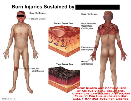 amicus,injury,burn,sustained,injuries,scalp,3rd,degree,2nd,third,second,face,knee,neck,shoulders,back,forearms,hands