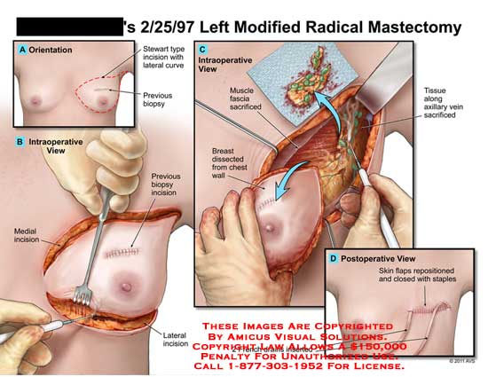 amicus,surgery,breast,chest,modified,radical,mastectomy,stewart,biopsy,muscle,fascia,sacrificed,dissected,wall,tissue,axillary,vein,french,drains,skin,flaps,