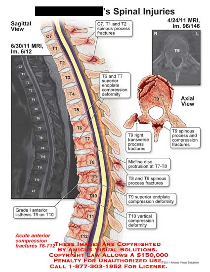 amicus,injury,spine,thoracic,injuries,MRI,spinous,process,fractures,endplate,compression,deformity,grade,I,listhesis,transverse,disc,protrusion,