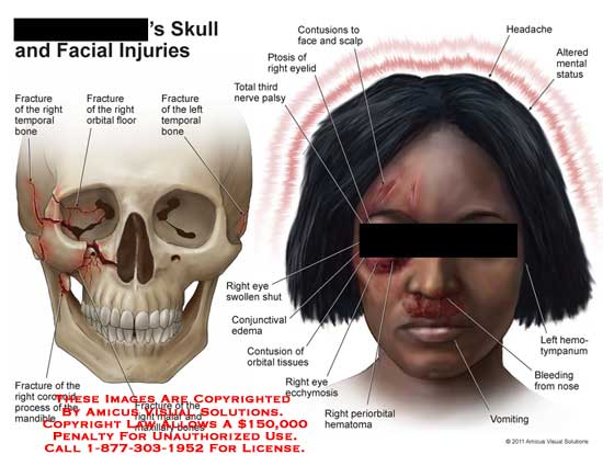 amicus,injury,skull,face,facial,injuries,fracture,temporal,bones,orbital,floor,coronoid,process,mandible,malar,maxillary,periorbital,hematoma,eye,ecchymosis,contusions,orbital,tissues,conjunctival,edema,swollen,third,nerve,palsy,ptosis,eyelid,scalp,headache,mental,status,hemotympanum,bleeding,nose,vomiting