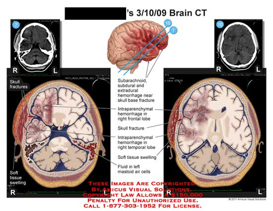 amicus,injury,brain,CT,skull,fractures,tissue,swelling,subarachnoid,subdural,extradural,hemorrhage,base,intraparenchymal,frontal,lobe,temporal,soft,fluid,mastoid,air,cells,
