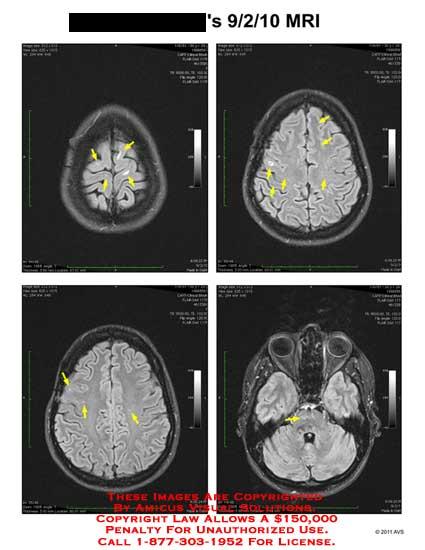 amicus,radiology,MRI,magnetic,resonance,imaging,brain,hyperintensities