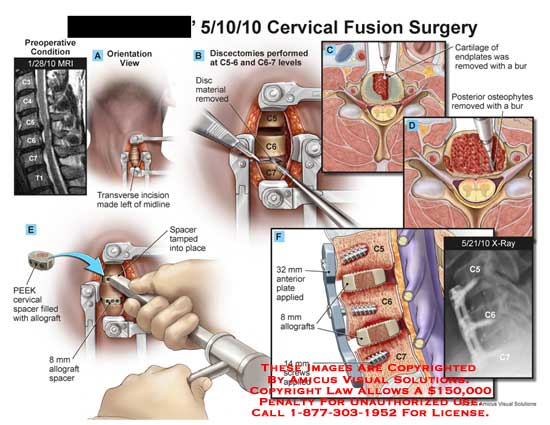 amicus,surgery,cervical,spine,fusion,vertebral,column,discectomies,cartilage,endplates,bur,osteophytes,PEEK,spacer,allograft,MRI,x-ray,plate,screws